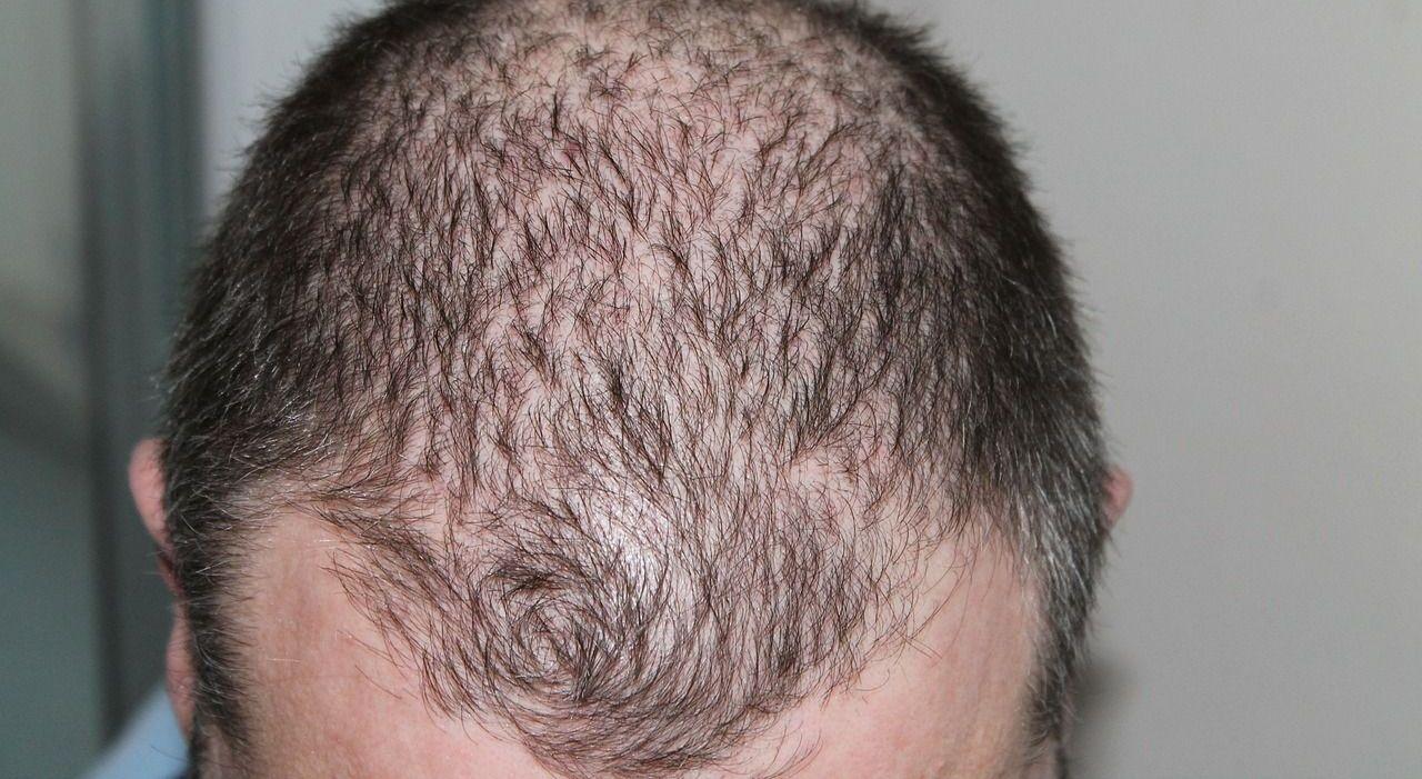 Haarausfall Ursache Behandlung