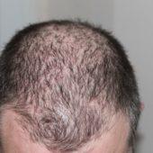 Haartransplantation ohne Rasieren